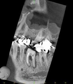 CT 根尖病巣 ブログ  1